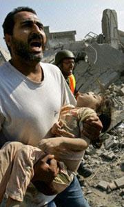 2006 - enfant victime d'un bombardement Israëlien sur le Liban